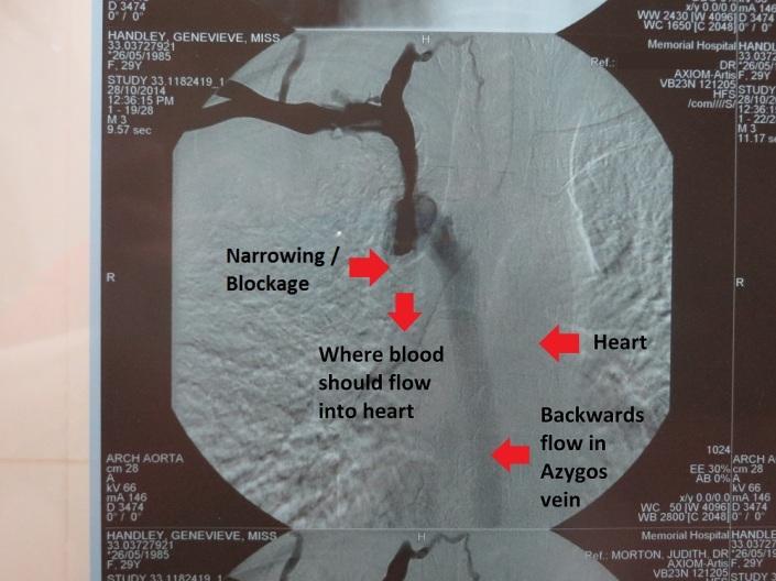 Angiogram